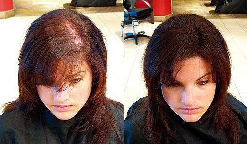 Купить в минске кокосовое масло для волос в